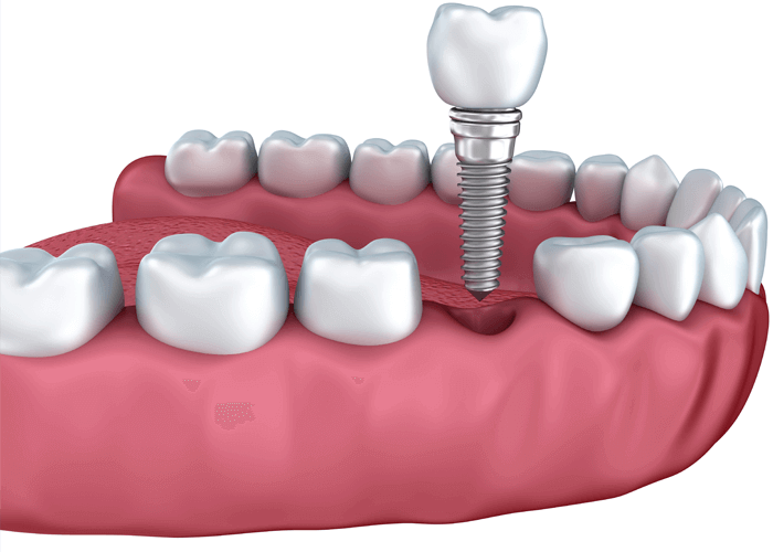 Dental Implants in Winchester VA - Apple Blossom Dentistry