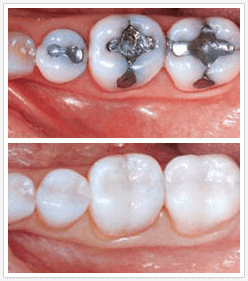 Modern advancements allow you new and attractive options rather than the embarrassment of unsightly and unhealthy silver fillings of the past. dental fillings Winchester VA