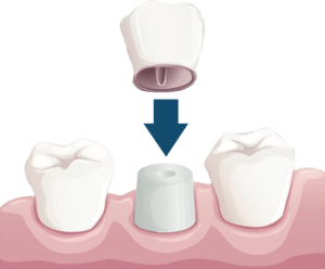 dental crowns winchester va, a dental crown protects and strengthens your tooth structure that cannot be restored with dental fillings or other types of restorations.