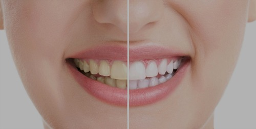Schedule a visit with our Winchester dental office to discover which teeth whitening process will be best for you. teeth whitening winchester va