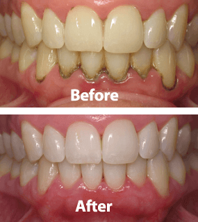 Gum Disease Treatment in Winchester VA