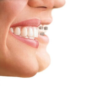 We improve abnormalities of the teeth and jaw, specifically on how they align together. Orthodontics in winchester VA