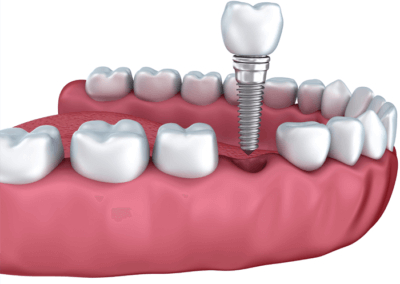 Dental implants are stronger and more durable than their restorative counterparts bridges and dentures. dental implants winchester va