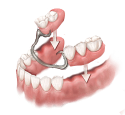 Partial dentures are available to replace multiple missing teeth in one single arch. partial dentures in winchester VA