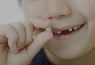 painless & professional tooth extraction winchester va