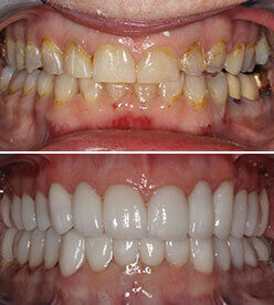 Mouth rehabilitation includes any and all procedures that can be done inside your mouth, ranging from simple cavities and fillings, to extensive bone surgeries, and repair. we offer Full Mouth Rehabiltation in winchester VA