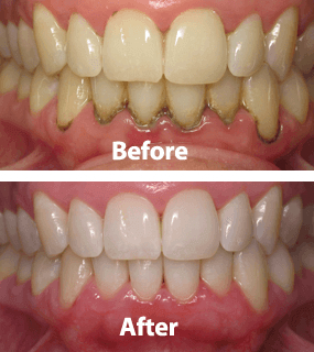 Gum Diseases are the second most common cause of dental pain and tooth loss, after dental decay.