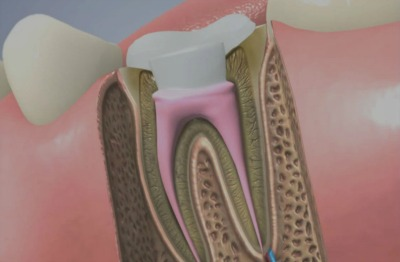 A root canal procedure is usually recommended after other dental treatment options have been considered. root canal treatment winchester va